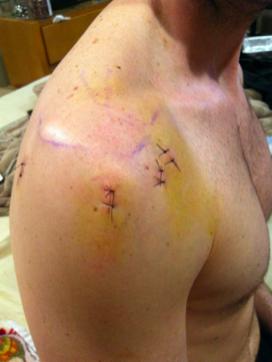 ožiljci