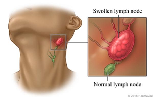 Limfni sustav