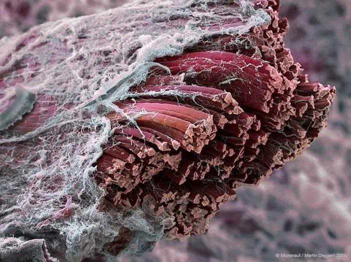 Fascija oko mišića